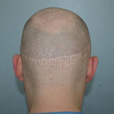 hairtransplant scars1
