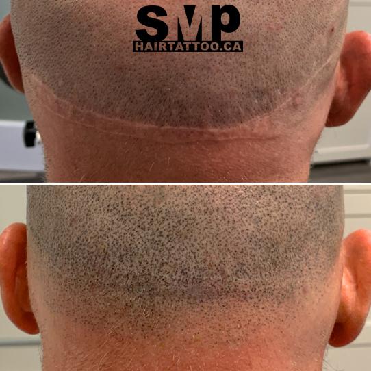 hairtransplant scars2