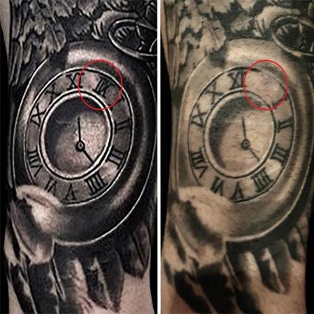 tattooremoval3