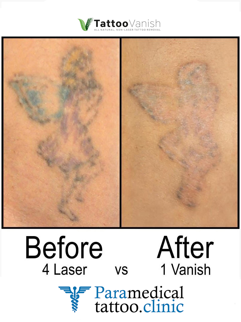 Before and After Tattoo Removal - Get the Best Res (2)