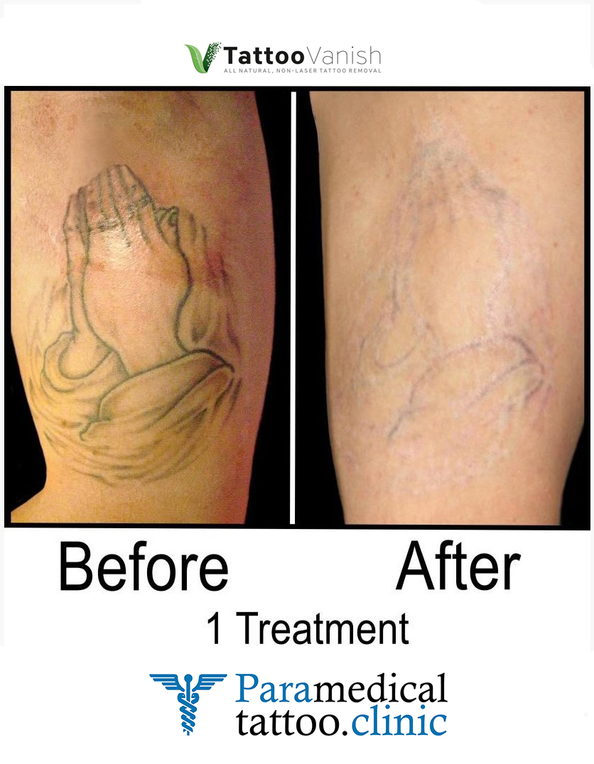 Before and After Tattoo Removal - Get the Best Res (3)