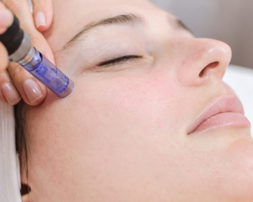 Hardware cosmetology, mesotherapy, treatment of cheek zone, face rejuvenation, close up